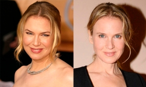 renee-zellweger-before-and-after-botox